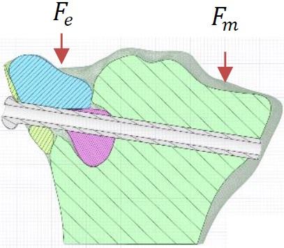 Prédiction de déformation biomécanique pour chirurgie de prothèse